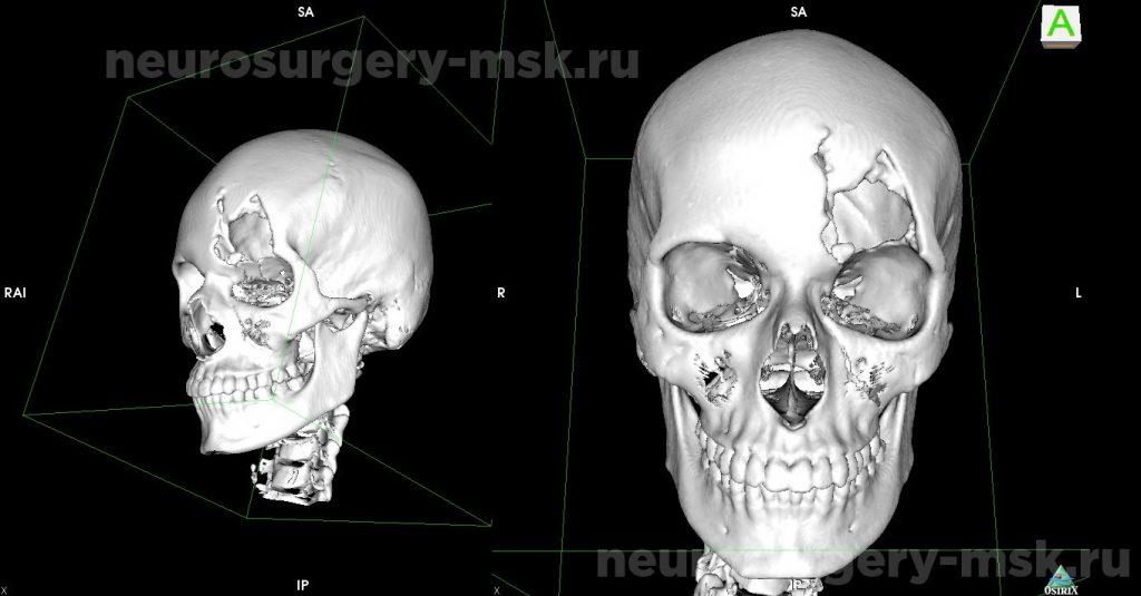 Дефект костей свода черепа в левой лобно-орбитальной области до операции