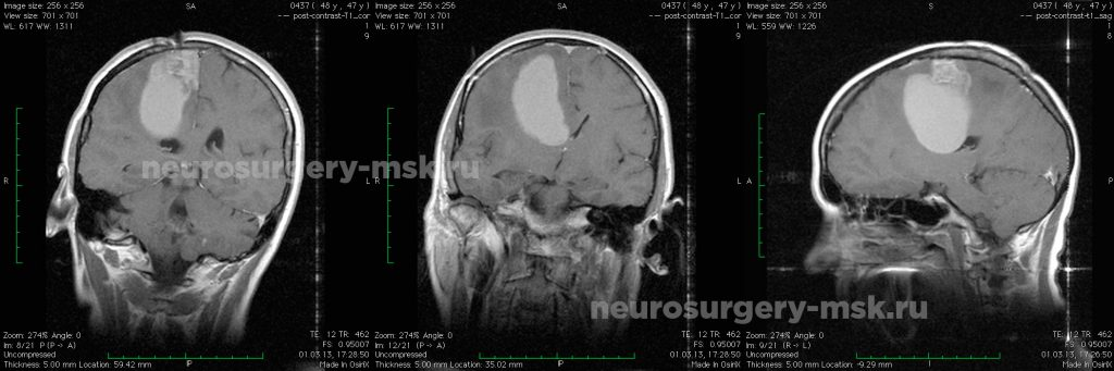 Удаление метастаза рака лёгкого в головной мозг (до операции)