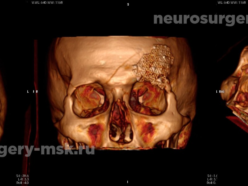 Репозиция вдавленного перелома свода черепа после операции