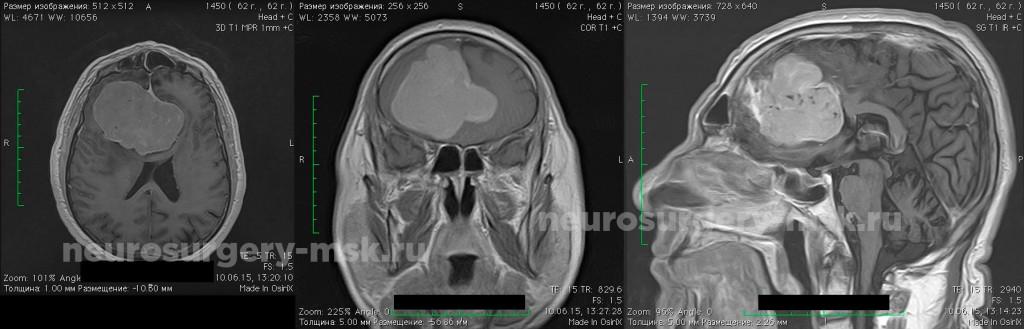 Удаление больших размеров менингиомы передней трети фалькса с двусторонним ростом.