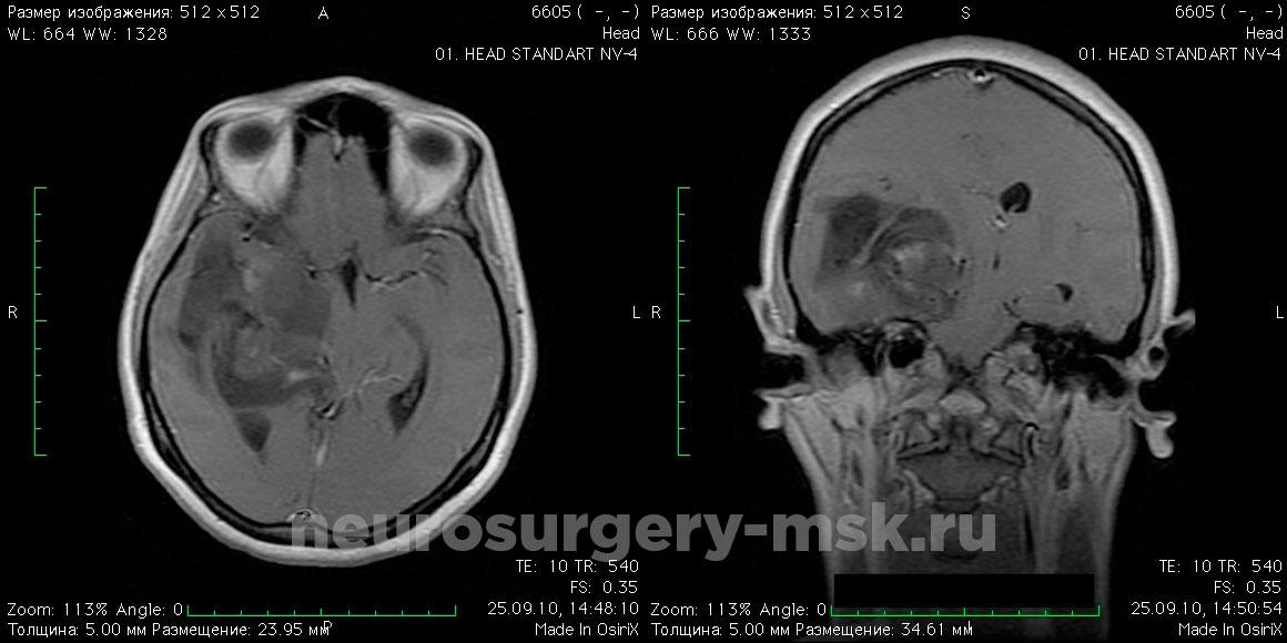 Астроцитома правой височной доли до операции