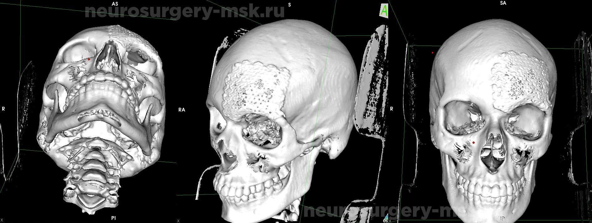 Дефект костей свода черепа в левой лобно-орбитальной области после операции