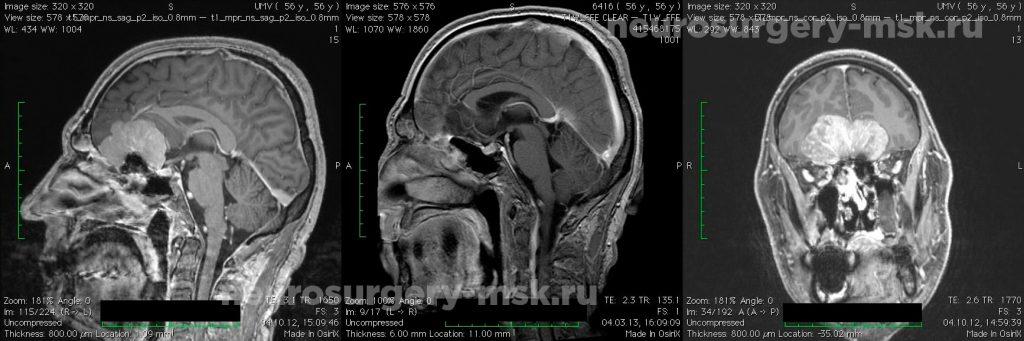 Менингиома ольфакторной ямки (до операции)